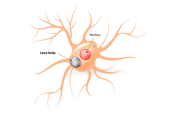 lewy-body-dementia-diseasejpg